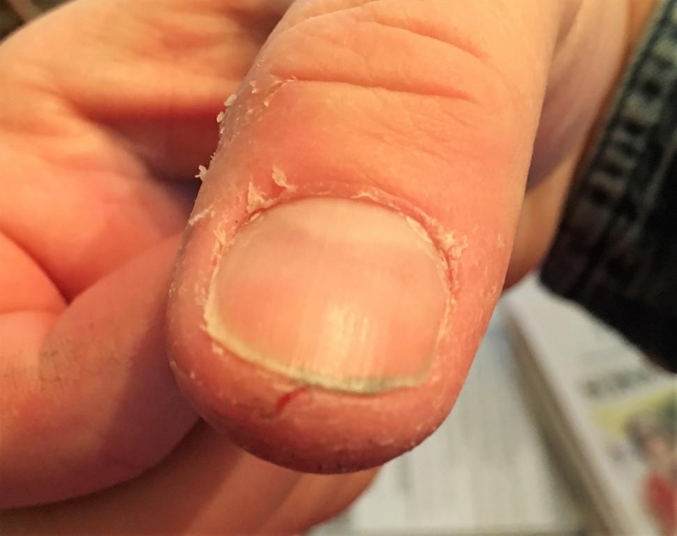 ash thumb